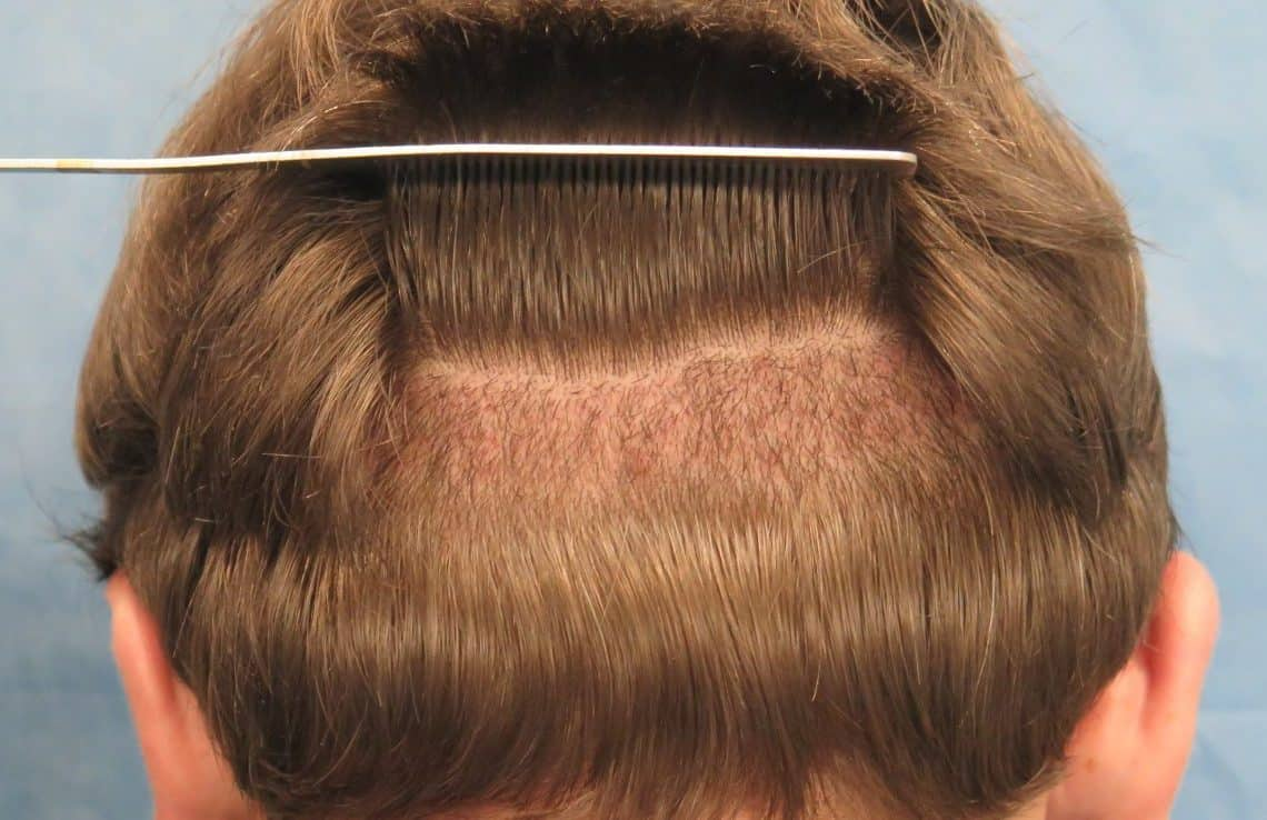Toronto Hair Transplants: Do They Really Work?