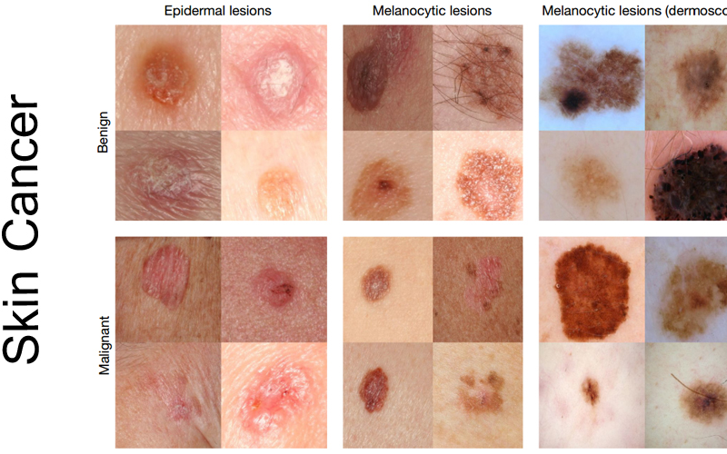 How to Minimise The Effects of Skin Cancer On Your Body