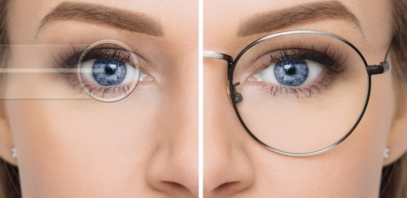 Criteria To Be The Right Candidate For Laser Eye Surgery