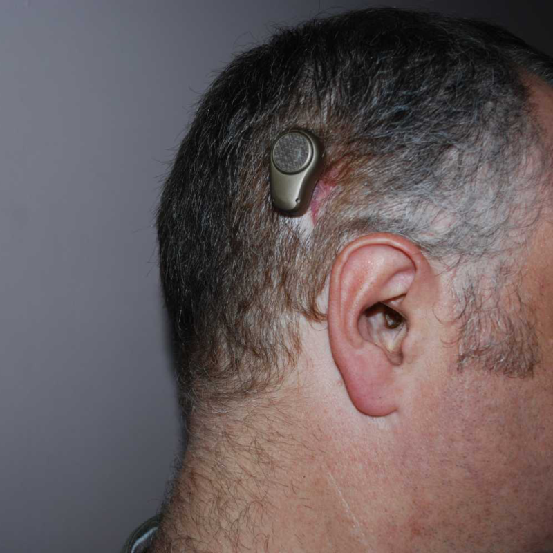 How To Prevent Bone Conduction Hearing Loss For Adults